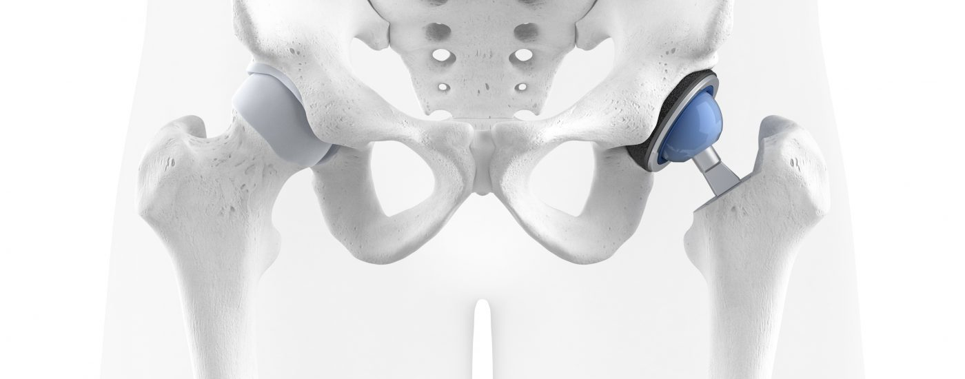 Hip prosthesis inside the patient